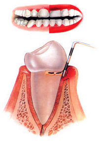 Moderate Gingivitis